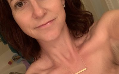 How Getting Breast Cancer Helped Me Connect with Patients